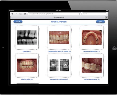 ADSTRA Dental Software ADSTRA iVIEWER is available on any platform: Windows, Mac, Android, iOS