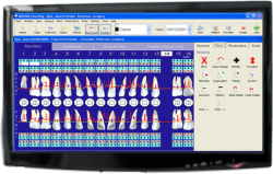 adstra dental software adstra charting perio chart
